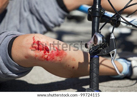 Bike fall injury