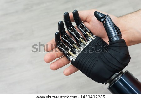 Bionic hand. Prosthetic human limbs. Manufacturing of artificial limbs from carbon.