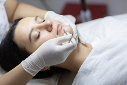 Blackhead cleansing on woman face during facial treatment at beauty clinic. Professional acne extraction procedure by dermatologist. Healthcare and beauty concept