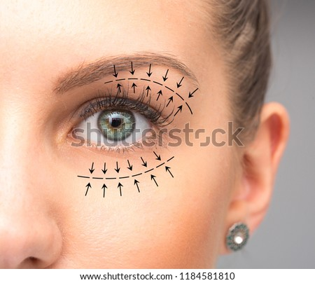 Blepharoplasty treatment on female eye