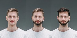 Blonde. Collage of man before and after visiting barbershop, client's delighted with different haircut, mustache, beard. concept of bodycare, male beauty, comparison. Shaving, hairstyling, coloring.