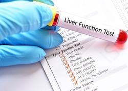 Blood sample for liver function test