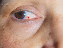 Blood spot on 50years old woman eye , eye disease concept