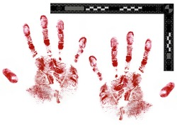 Bloody adult male hand prints with forensic scale