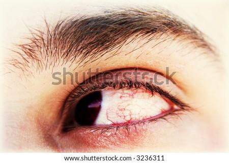 Bloody tired eye. Long computing concept