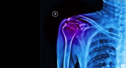 Blue tone of plain radiograph of human shoulder after accident.The film shown calcific tendinitis of rotator cuff.Patient came to hospital with severe pain. Medical concept.
