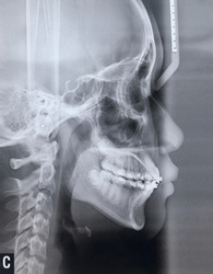 Blurred images and noise of Dental x-ray images of girls aged 14 years to detect abnormalities of the teeth.
