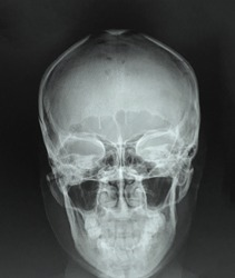 Blurred of Film x-ray skull and paranasal sinuses (PNS) : (Caldwell view , Water's view) : Normal all paranasal sinuses and normal skull