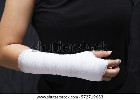 Blurry of arm splint, be in plaster cast Injured female hand