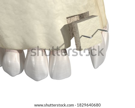 Bone grafting- augmentation using block of bone, tooth implantation. Medically accurate 3D illustration Stockfoto ©