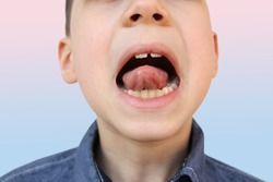 boy, kid performs articulation exercises for mouth, concept of speech disorders, correction, frenum of tongue, methods of correctional developmental exercises