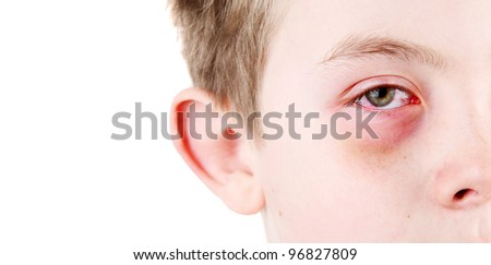 Boy with an injured eye