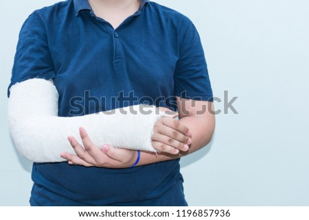 Boy with broken arm, plaster on arm as therapy. Close up of a young man's white long arm plaster / fiberglass cast covering the wrist, arm, and elbow after an skating accident. #1196857936
