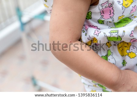 "Boy with symptoms hand, foot and mouth disease . children ""  HFMD "" with disease .Mouth Foot and Mouth Disease caused by a strain of Coxsackie virus. right rash with maculopapular lesions on skin . #1395836114"