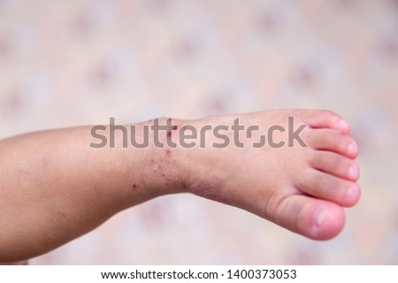 "Boy with symptoms hand, foot and mouth disease . children ""  HFMD "" with disease .Mouth Foot and Mouth Disease caused by a strain of Coxsackie virus. right rash with maculopapular lesions on skin . #1400373053"