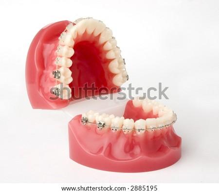 braces model - stock photo