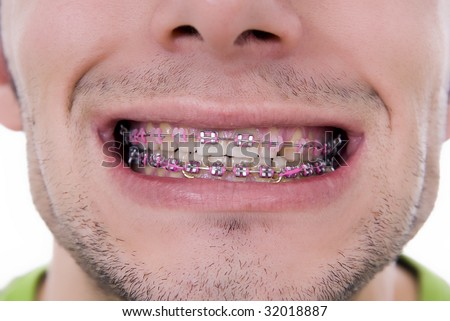 Braces with multicolored bands