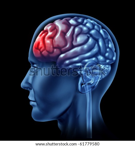 brain head ache migrain throbbing pain lobes frontal psycologist therapy
