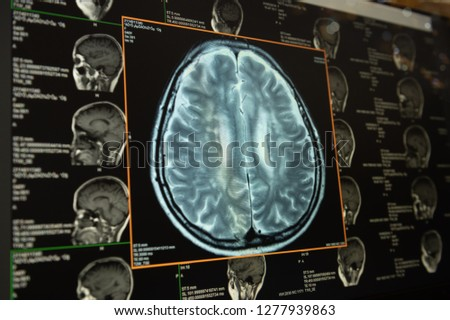 brain image on screen computer from CT scan or MRI scan. healthcare and medicine concept.