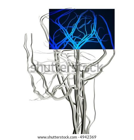 Brain MRI X-ray