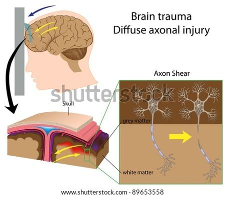 Brain trauma with axon shear