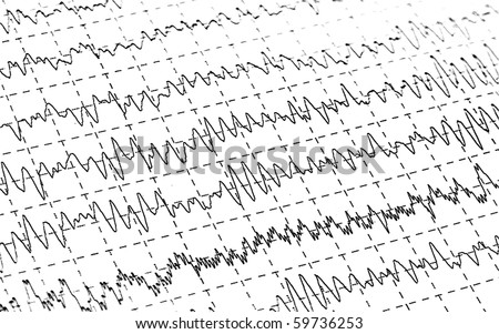 Background Brain Waves Brain Waves on Encephalogramme
