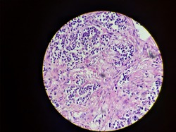 Breast Invesive ductal carcinoma, light micrograph, photo under microscope,Human cells magnification 400X