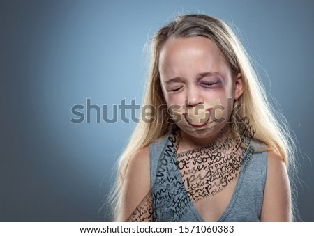 Breathe. Sad little girl with bloodshot, bruised eyes and covered mouth. Concept of child violence, domestic abuse. Depressed being victim of parents. Illusion of childhood. Invisible male hand #1571060383
