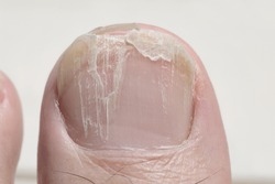 Brittle toenail causing nail surface layers or lamella to peel away with some parts splitting or broken off. Grooves and ridges on cracked nail plate due to onychorrhexis or brittle nail syndrome.