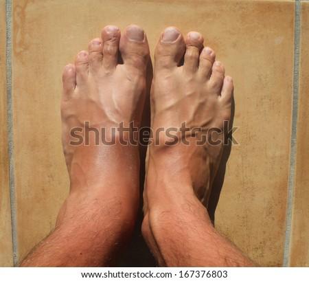 Broken ankle, mens feet