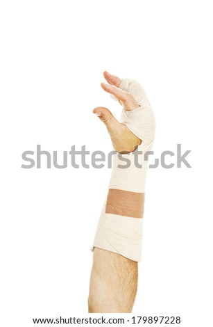 Broken arm bone in cast. Isolated on white background