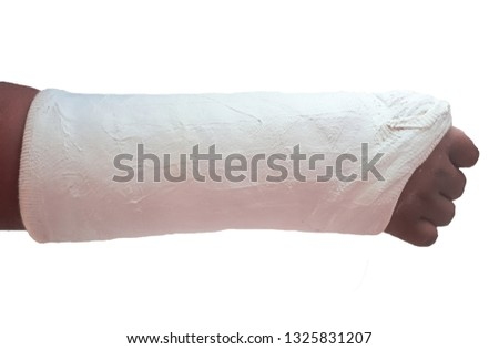 Broken arm bone ,splinting arm, Plaster of  arm and white background.