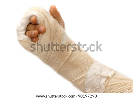 broken arm in a cast over white background