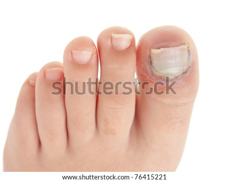 Broken big toe with nail detachment on pure white background