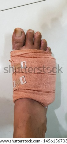 Broken leg with crepe bandage