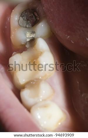 broken molar and amalgam filling