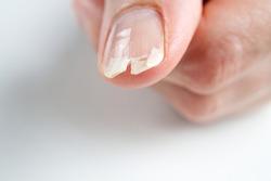 broken nail on a female hand. close-up shoot of broken nail.