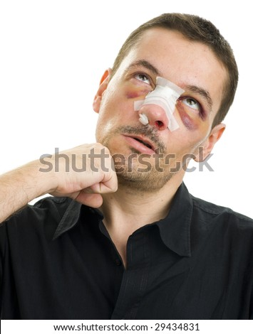broken nose post operation - stock photo