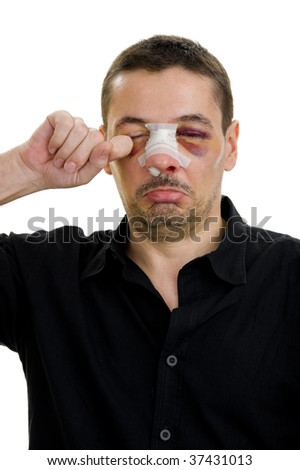 broken nose post operation, isolated on white