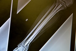 Broken right leg tibia surgery procedure. Metallic rod inserted inside the tibia to keep both pieces in place.