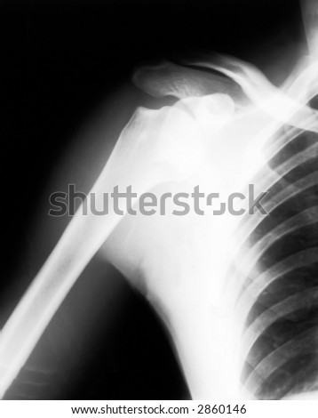 Broken shoulder on black and white x-ray film