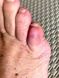 Bruised fractured little toe of a senior man broken through blunt force trauma view in close up from above on textile