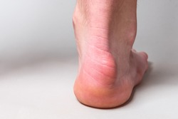 Bump on the back of heel bone called Haglund's deformity on gray background.