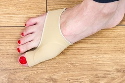 Bunion on big toes of female feet. Woman uses a special protection bandage to treat and prevent painful Hallux Valgus.