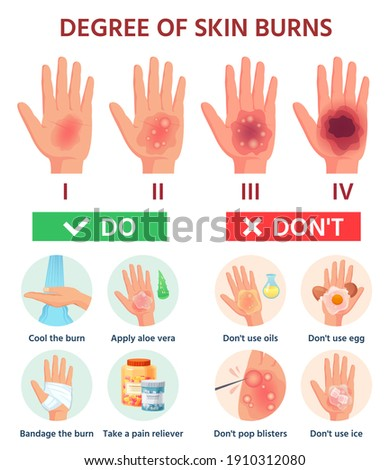 Burns degree. First aid for burn wound. Fire damage to skin classification. Hand blisters.  infographic treatment for thermal wound. Illustration injury pain damage, medicine help Foto stock ©