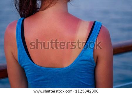 burnt female skin in the sun close-up in a blue t-shirt