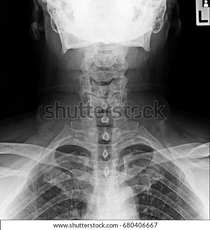 Xray of neck and cervical spine, front and side view. | EZ Canvas