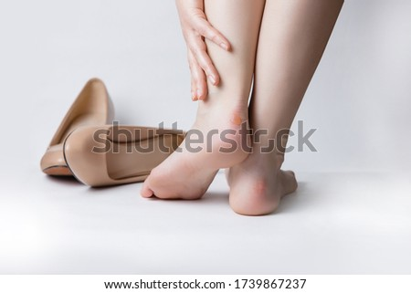 Callus blisters on woman feet. Painful wounds. Uncomfortable shoes problems. Women after a workday on high heels ストックフォト ©