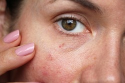 capillaries on the skin of the face
