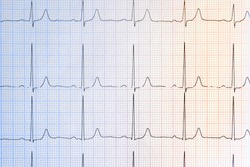 Cardiogram background. Medical pulse line heart. ECG cardiogram pulse graph on a paper